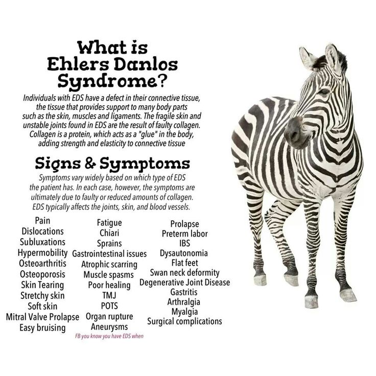 EDS or Ehlers-Danlos syndrome